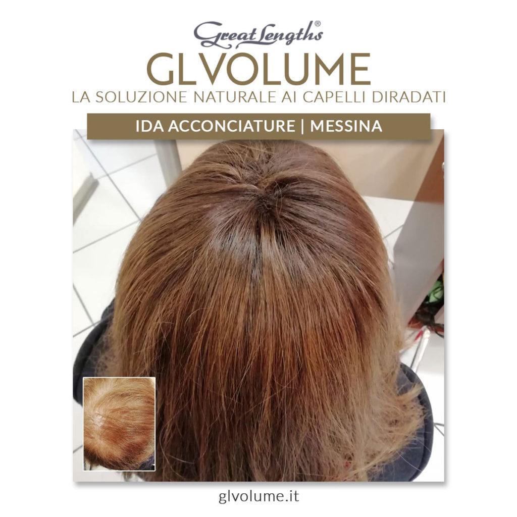 Extension su capelli diradati